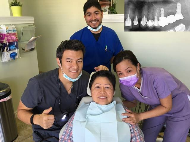 """No more root canals for me, I'd rather get an implant!"""